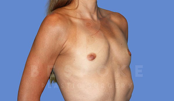 Breast Augmentation Gallery - Patient 4710017 - Image 3