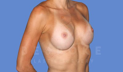 Breast Augmentation Gallery - Patient 4710017 - Image 4