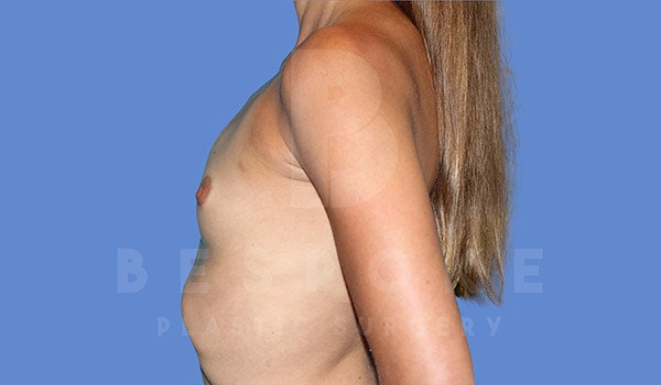 Breast Augmentation Gallery - Patient 4710017 - Image 5