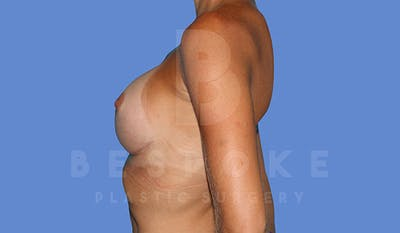 Breast Augmentation Gallery - Patient 4710017 - Image 6