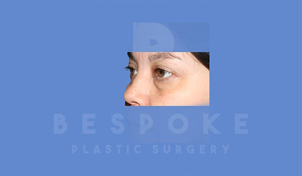 Eyelid Surgery Gallery - Patient 4757556 - Image 1