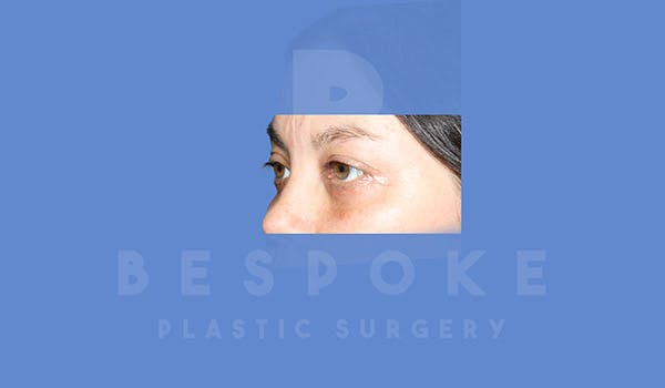 Eyelid Surgery Gallery - Patient 4757556 - Image 2