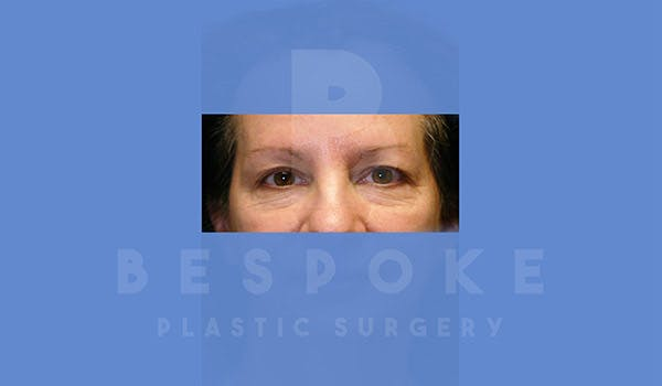 Eyelid Surgery Gallery - Patient 4757557 - Image 1