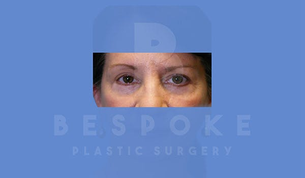 Eyelid Surgery Gallery - Patient 4757557 - Image 2