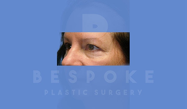 Eyelid Surgery Gallery - Patient 4757557 - Image 3