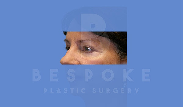 Eyelid Surgery Gallery - Patient 4757557 - Image 4
