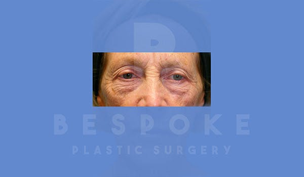 Eyelid Surgery Gallery - Patient 4757558 - Image 1