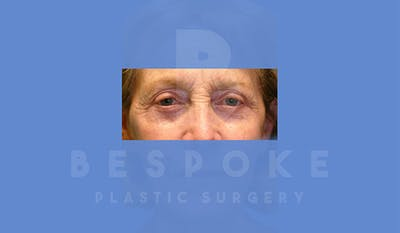 Eyelid Surgery Gallery - Patient 4757558 - Image 2