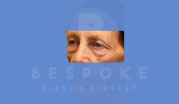 Eyelid Surgery Gallery - Patient 4757558 - Image 3