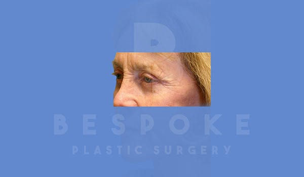 Eyelid Surgery Gallery - Patient 4757558 - Image 4