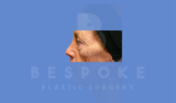 Eyelid Surgery Gallery - Patient 4757558 - Image 5