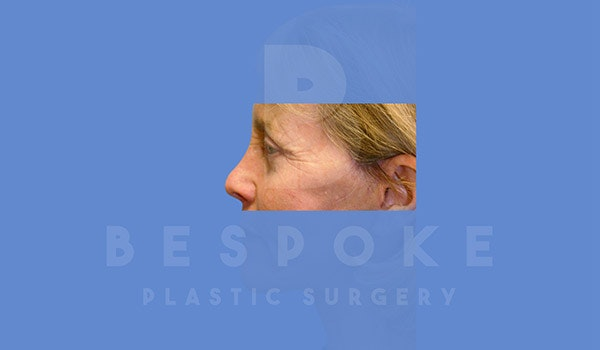 Eyelid Surgery Gallery - Patient 4757558 - Image 6