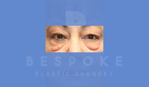 Charlotte NC Eyelid Surgery Results