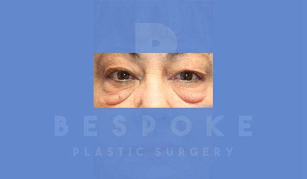 Eyelid Surgery Gallery - Patient 4757559 - Image 1