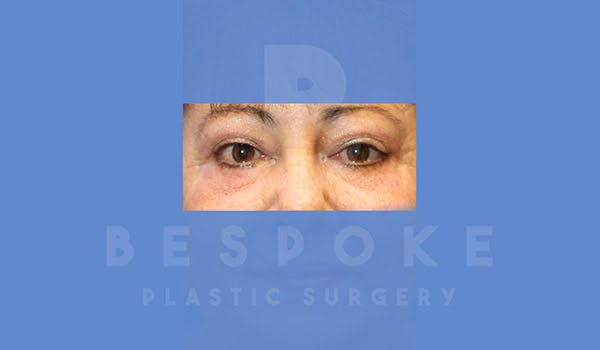 Eyelid Surgery Gallery - Patient 4757559 - Image 2