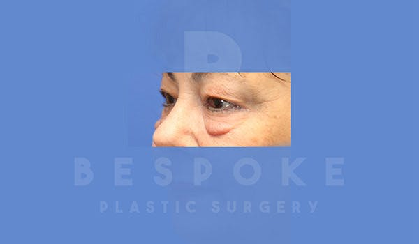 Eyelid Surgery Gallery - Patient 4757559 - Image 3