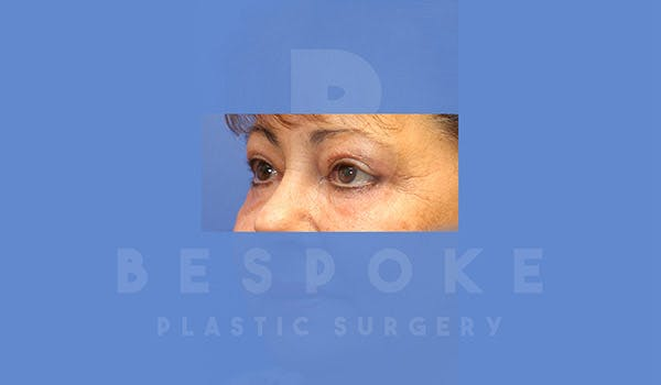 Eyelid Surgery Gallery - Patient 4757559 - Image 4