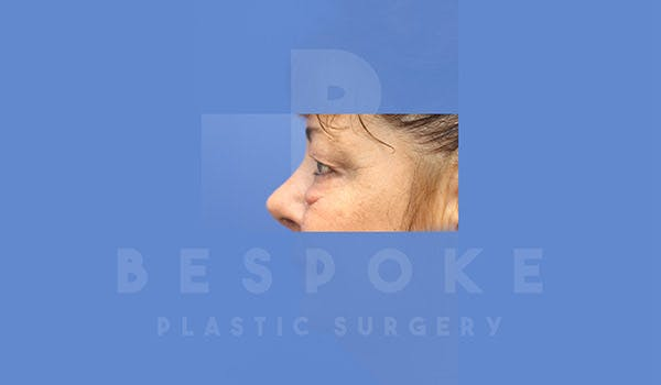 Eyelid Surgery Gallery - Patient 4757559 - Image 5