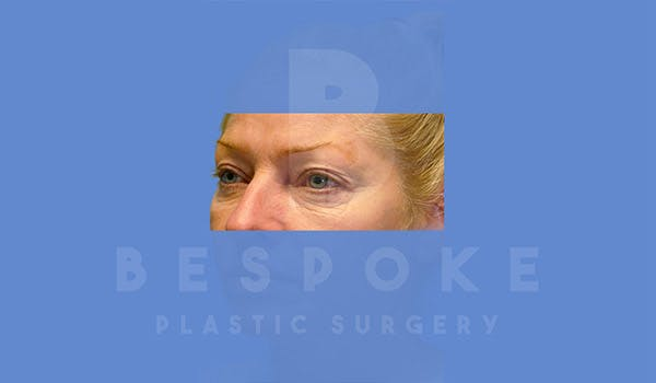 Eyelid Surgery Gallery - Patient 4757560 - Image 1