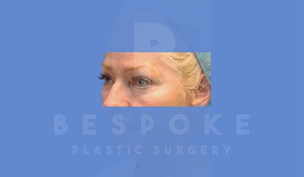Eyelid Surgery Gallery - Patient 4757560 - Image 2