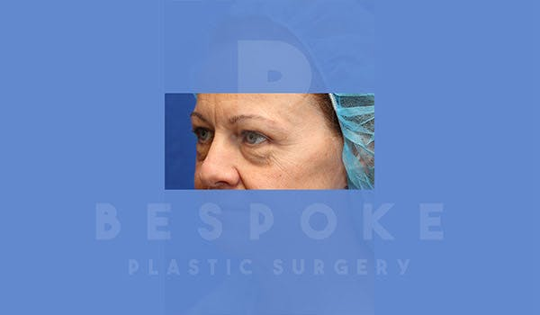 Eyelid Surgery Gallery - Patient 4757561 - Image 1