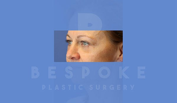 Eyelid Surgery Gallery - Patient 4757561 - Image 2