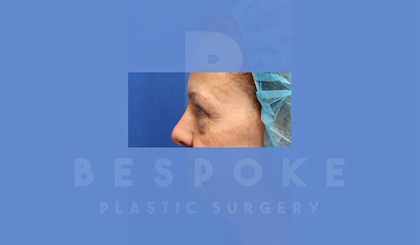 Eyelid Surgery Gallery - Patient 4757561 - Image 3