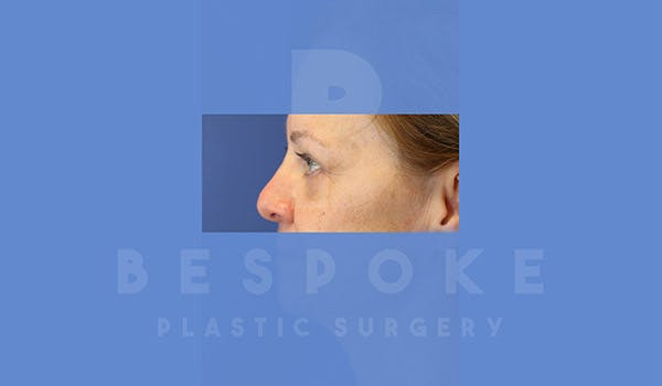 Eyelid Surgery Gallery - Patient 4757561 - Image 4