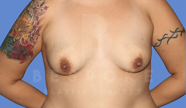 Mommy Makeover Gallery - Patient 4757565 - Image 1