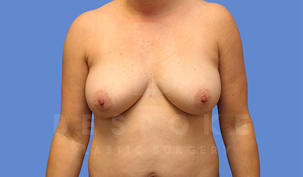 Mommy Makeover Gallery - Patient 4757566 - Image 7
