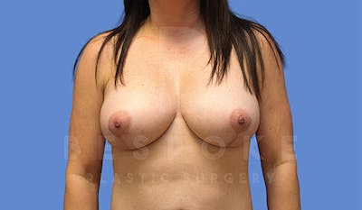 Mommy Makeover Gallery - Patient 4757566 - Image 2