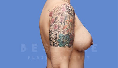 Mommy Makeover Gallery - Patient 4757565 - Image 4