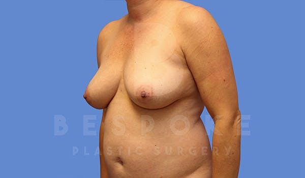 Mommy Makeover Gallery - Patient 4757566 - Image 3
