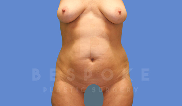 Mommy Makeover Gallery - Patient 4757567 - Image 8