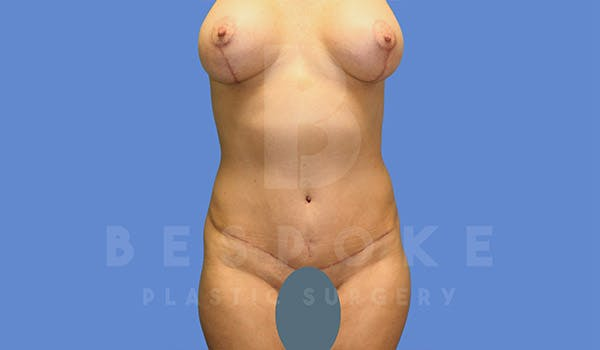 Mommy Makeover Gallery - Patient 4757567 - Image 2