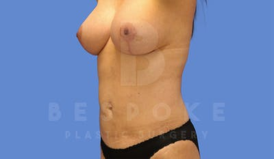 Mommy Makeover Gallery - Patient 4757566 - Image 4