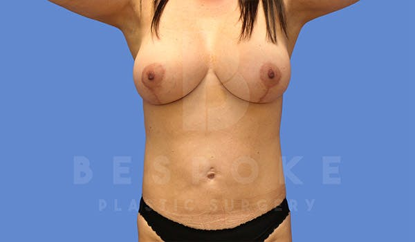 Mommy Makeover Gallery - Patient 4757566 - Image 6