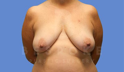 Mommy Makeover Gallery - Patient 4757568 - Image 1