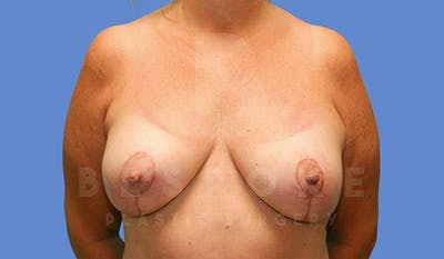 Mommy Makeover Gallery - Patient 4757568 - Image 2