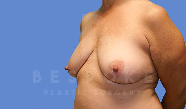Mommy Makeover Gallery - Patient 4757568 - Image 3