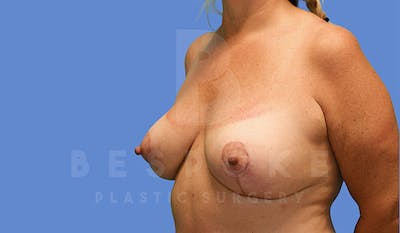 Mommy Makeover Gallery - Patient 4757568 - Image 4