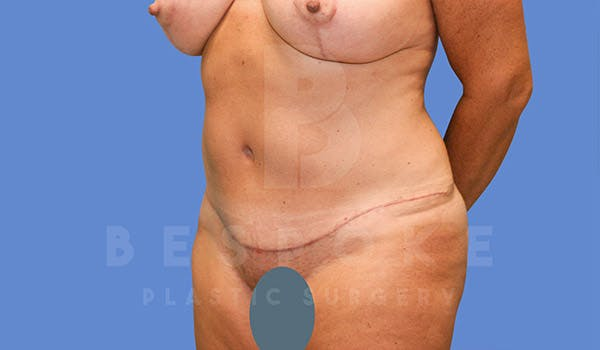 Mommy Makeover Gallery - Patient 4757568 - Image 6