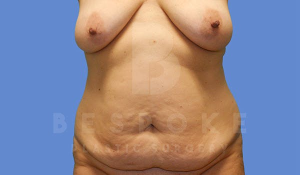Mommy Makeover Gallery - Patient 4757568 - Image 7