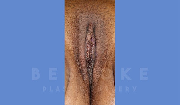Labiaplasty Gallery - Patient 4757595 - Image 2