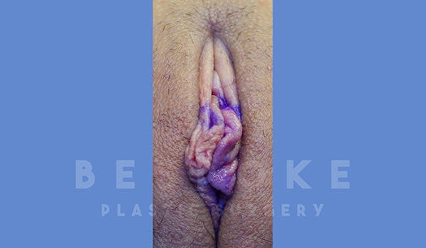 Labiaplasty Gallery - Patient 4757596 - Image 1