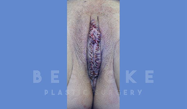 Labiaplasty Gallery - Patient 4757597 - Image 2
