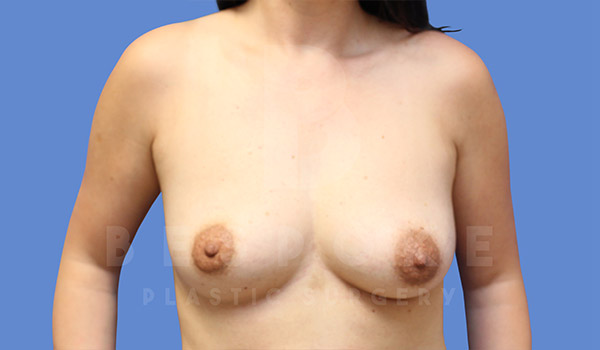 Breast Lift With Implants Gallery - Patient 4757612 - Image 3