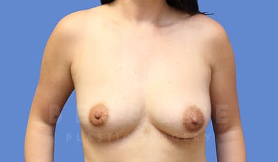 Breast Lift With Implants Gallery - Patient 4757612 - Image 1