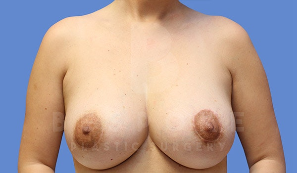 Breast Lift With Implants Gallery - Patient 4757612 - Image 2