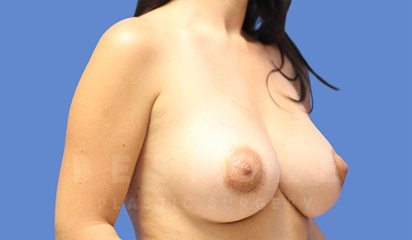 Breast Lift With Implants Gallery - Patient 4757612 - Image 4